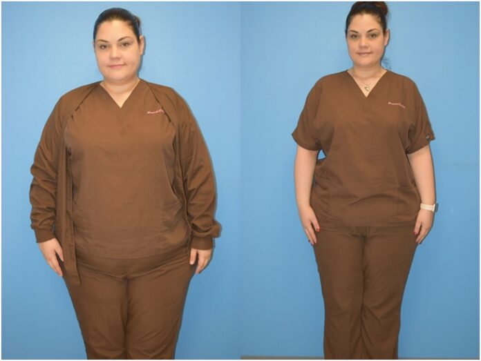 Confused Between Liposuction and Gastric Sleeve